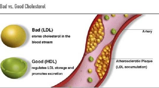 bad versus good cholesterol
